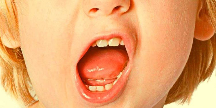 Lihat mulutmu - Renungan Kristen - Menjaga Ucapan